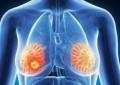 Gjatësia përcakton sëmundjet që ju prekin gjatë jetës