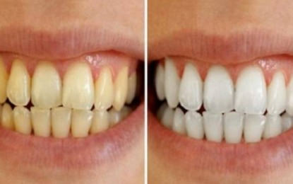 Zbardhja e dhëmbëve shpejt, thjesht dhe pa kosto