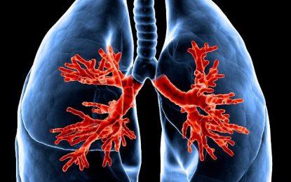 Mushkëritë nuk i dëmton vetëm duhani